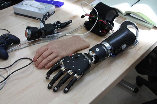 Photo of new bionic hand prosthesis